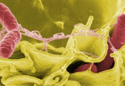 Salmonella causes most foodborne-illness outbreaks, CDC reports