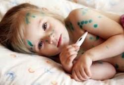 Как лечить ветрянку у ребенка