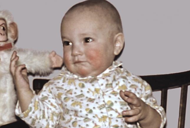 Детский атопический дерматит и диатез