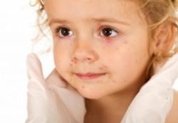 Почему появляются красные прыщи на теле у ребенка?