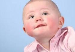 Проявления аллергических заболеваний у детей