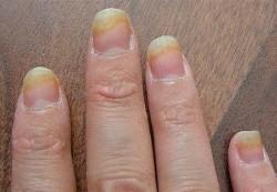 Что делать, если у ребенка ногтевой грибок?