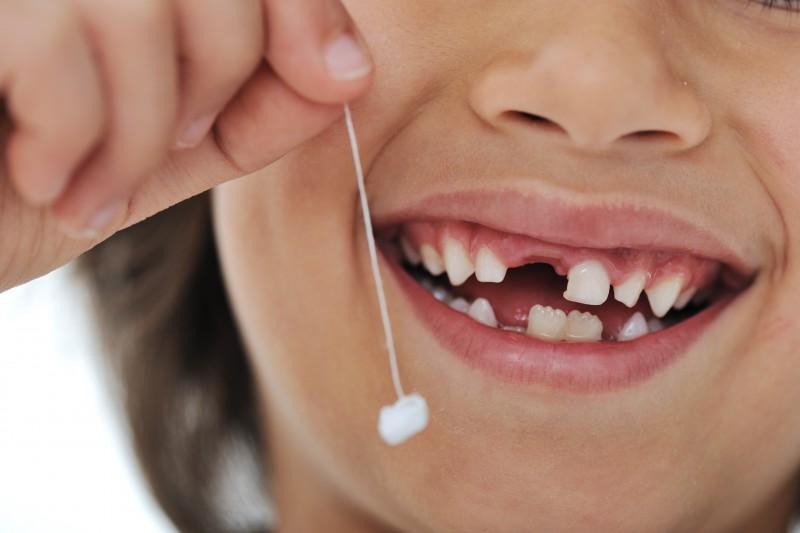 Как удалить молочный зуб у ребенка