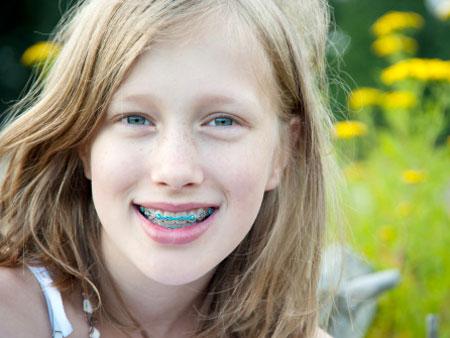 Установка брекетов подросткам в детской стоматологии