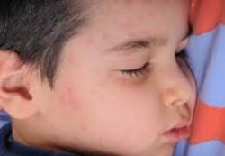 Продукты, вызывающие аллергию у детей