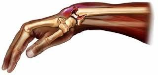Переломы костей у ребёнка