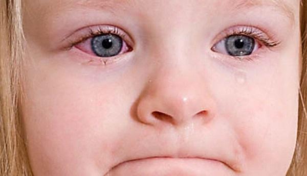 Особенности лечения конъюнктивита в детском возрасте