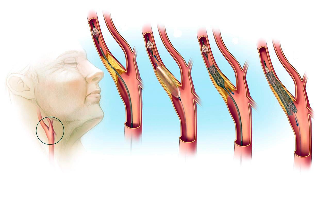 Операции на артериях