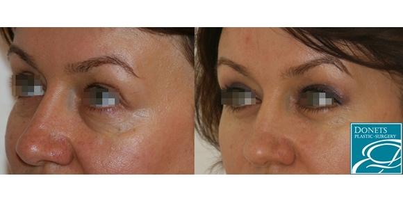 Особенности блефаропластики, операции с подтяжкой глаз