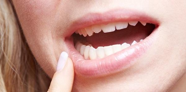 Проблемы пародонта десен и кариеса зубов