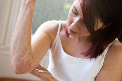 Лечение псориаза, современная формула и только натуральные ингредиенты
