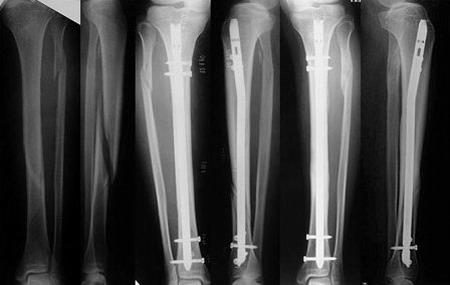 Как лечат переломы у животных? Остеосинтез.