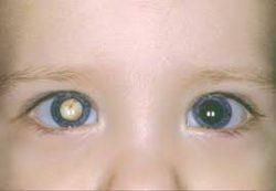 Врожденная катаракта: симптомы и методы лечения