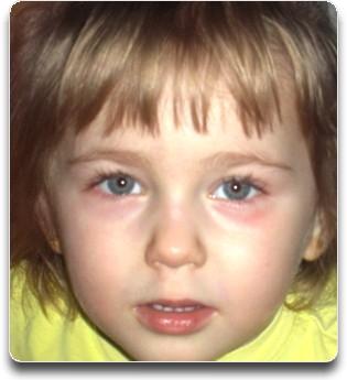 Почему у детей появляются синяки под глазами?