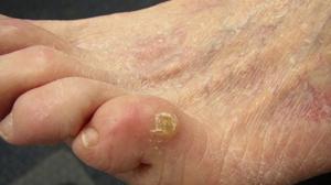 Мозоль между пальцев ног: как лечить мокрые и сухие мозоли