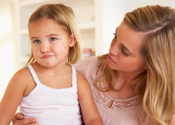 Избавьте своего ребенка от вшей быстро и эффективно