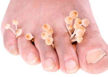 Грибок ногтей: виды, признаки, лечение и профилактика заболевания