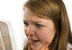 Как лечить угревую сыпь у подростков?