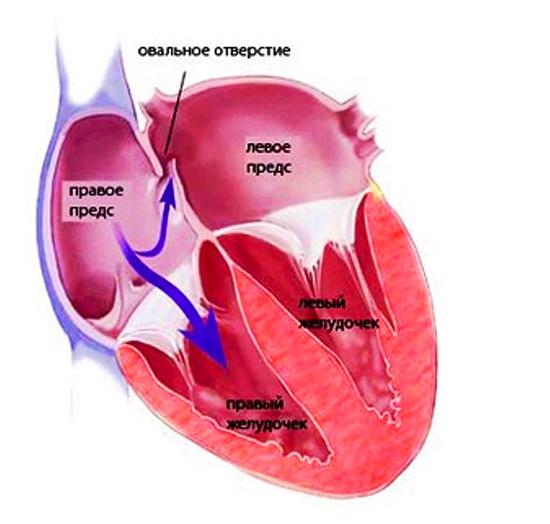 Открытое овальное окно в сердце у новорожденного ребенка: норма размеров, диагностика, лечение