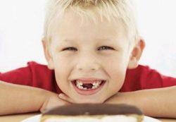 Лечение и профилактика кариеса молочных зубов у детей