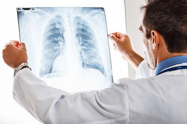 Диагностика детского туберкулеза: основные нюансы