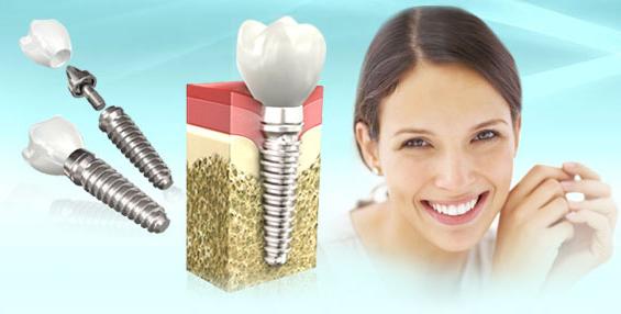 Подготовка к имплантации зубов — первый визит к стоматологу