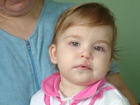 Волчья пасть у детей: причины, операция