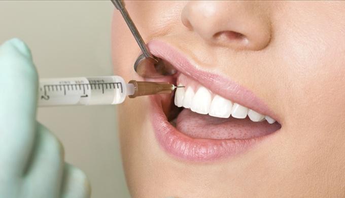 Что нужно для лечения кисты зуба