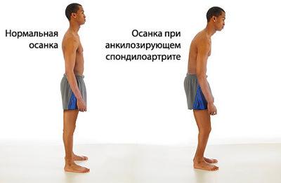 Болезнь Бехтерева, или Анкилозирующий спондилоартрит
