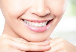 Отбеливание зубов — применяемые технологии