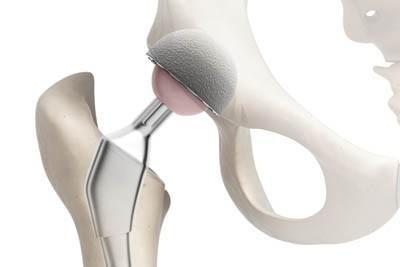 Протез тазобедренного сустава, особенности подбора протеза