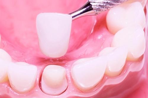 Поставить коронку на зуб: материалы, особенности процедуры