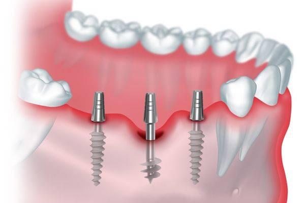 Базальная имплантация – минусы и плюсы