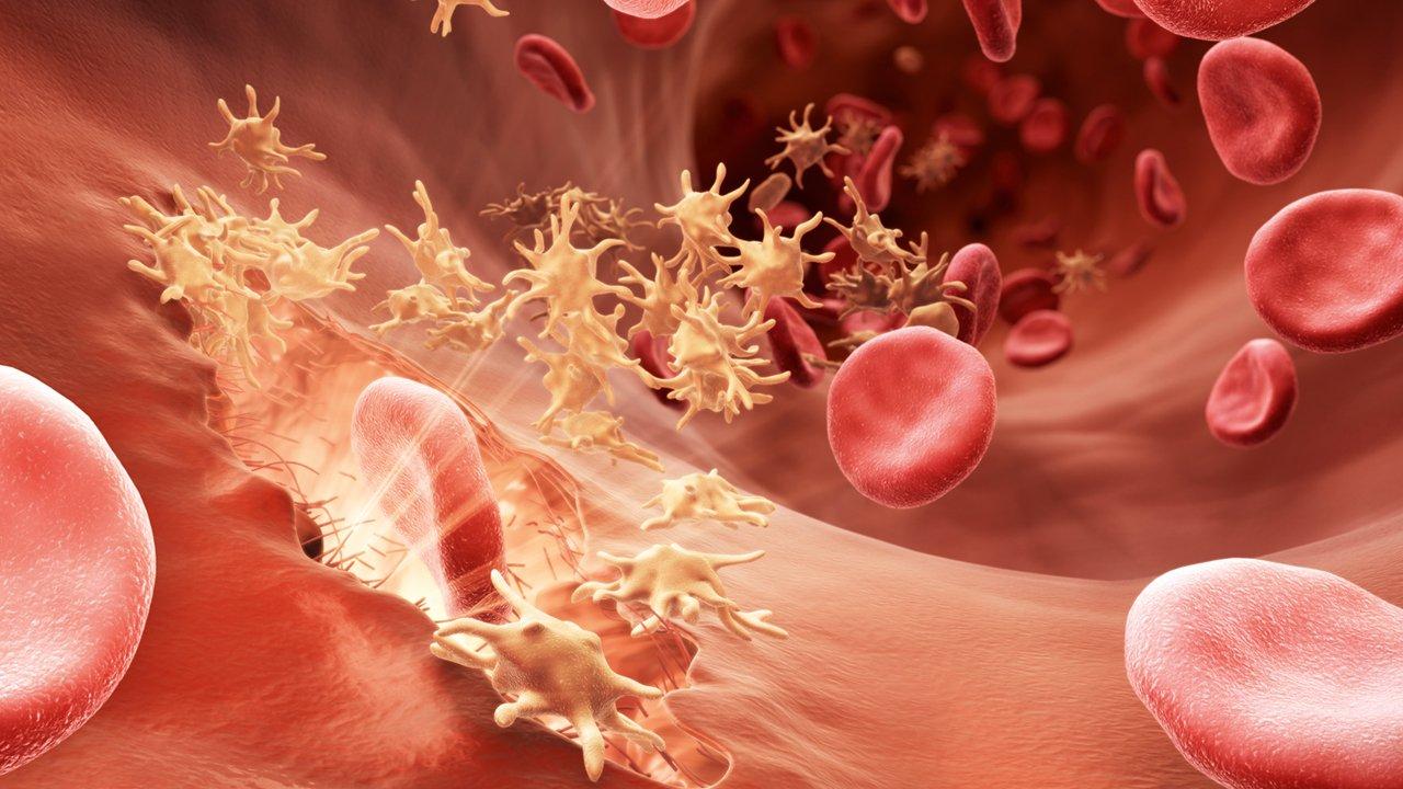 Гемофилия: симптомы, лечение у детей