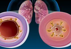 Обструктивный бронхит у грудничка: симптомы и лечение