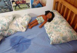 Энурез у детей: причины, формы, лечение