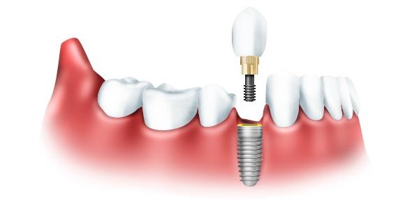 Современный стоматологический центр – эффективное решение задач протезирования