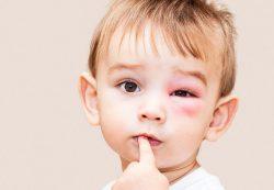 Красные флажки: Основные поводы для вызова скорой ребенку