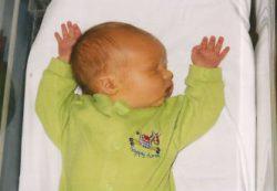 Опасные и неопасные причины желтухи у новорожденных