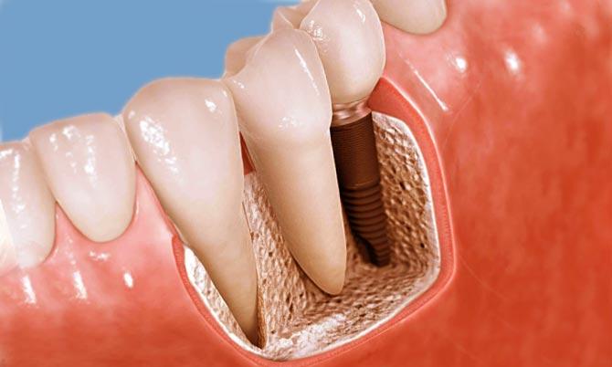 Операции по протезированию зубов в клинике «Имплант Лаб»