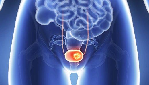 Заболевания мочевого пузыря у женщин