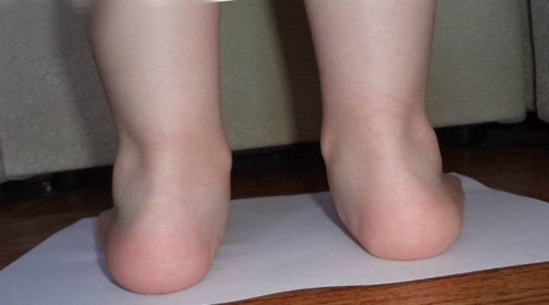 Вальгусная деформация стопы у детей: причины, признаки, диагностика и лечение