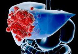 Цирроз печени: причины, симптомы, прогноз