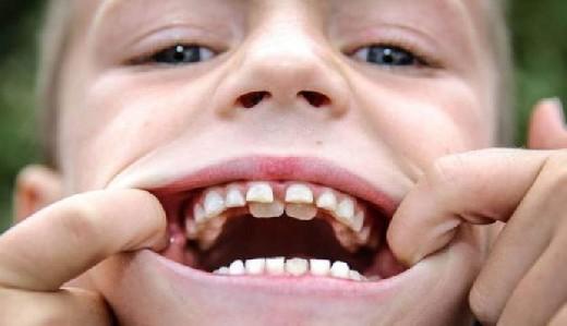 Детские зубы могут  содержать ключи к будущим рискам для здоровья