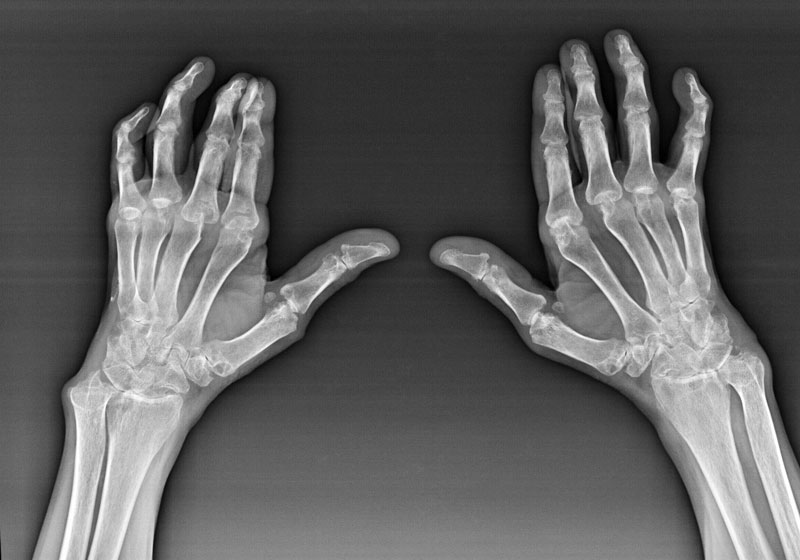 Где сделать рентген кистей рук?
