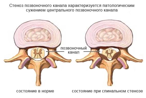 Стеноз позвоночника канала