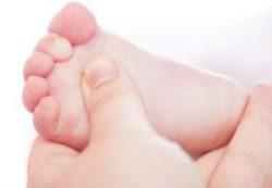 Вальгусная деформация стопы у детей: как определить, лечение