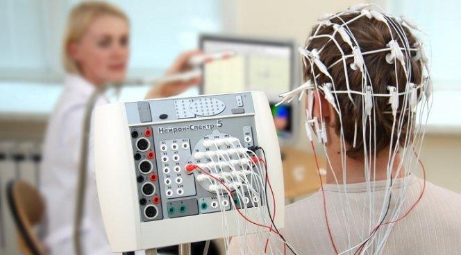 Обнаружен новый способ лечения эпилепсии у ребенка