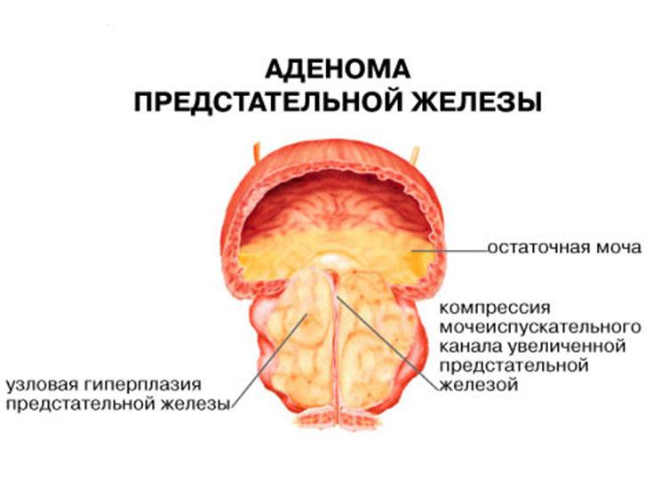 Простатит и аденома простаты у мужчин — какие симптомы
