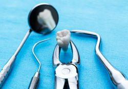 Стоматология MY ORT: удаление зубов и другие стоматологические услуги по доступным ценам